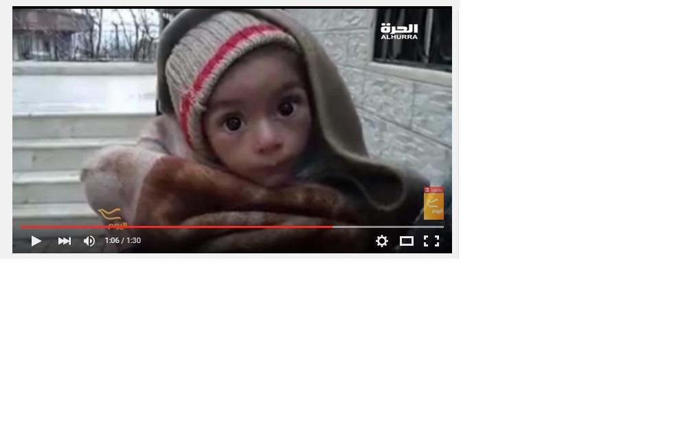 أحد أطفال مضايا الذين يعانون من سوء التغذية