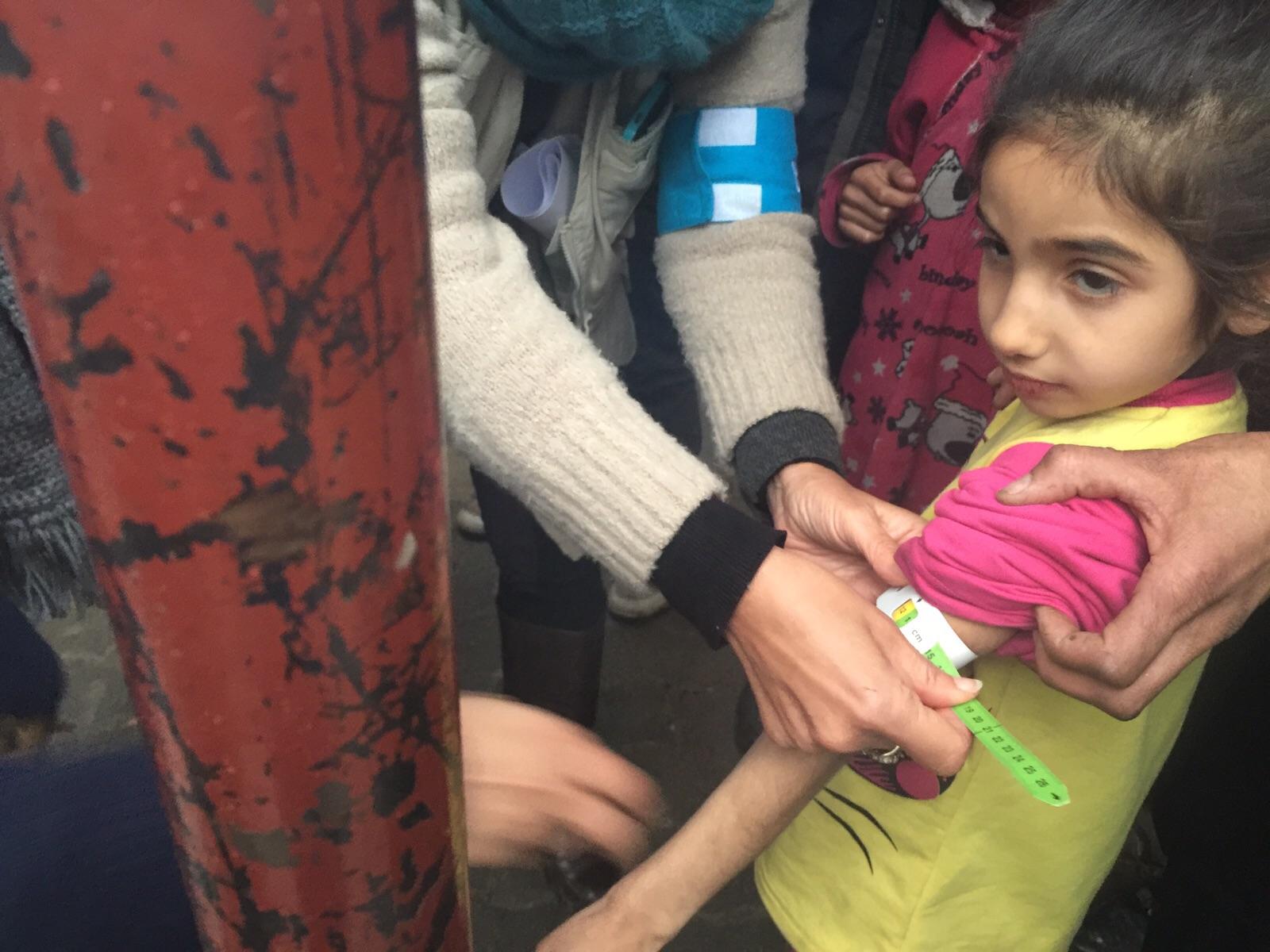 طفلة بمدينة مضايا المحاصرة تعاني من سوء التغذية