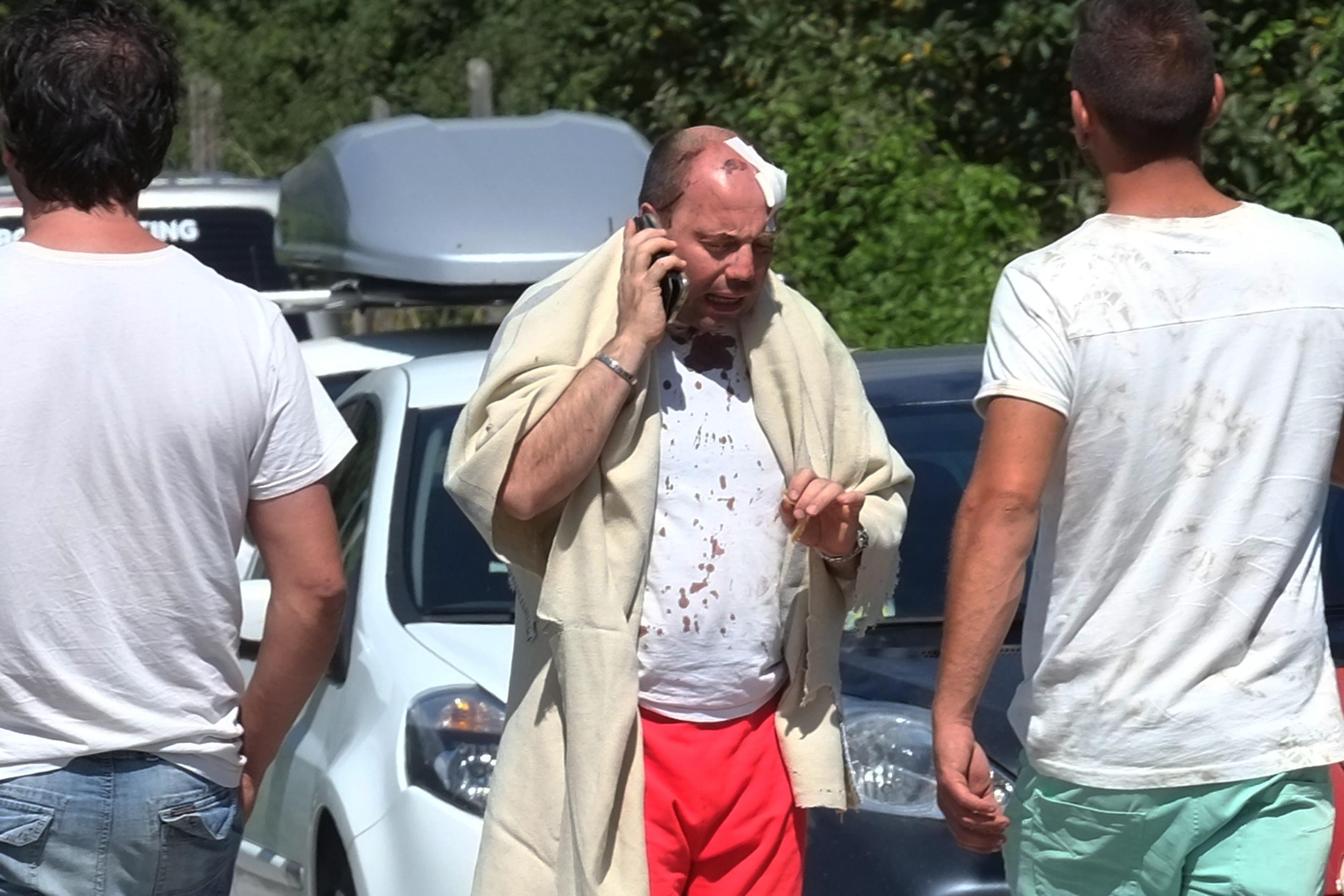 رجل مصاب يتحدث في الهاتف