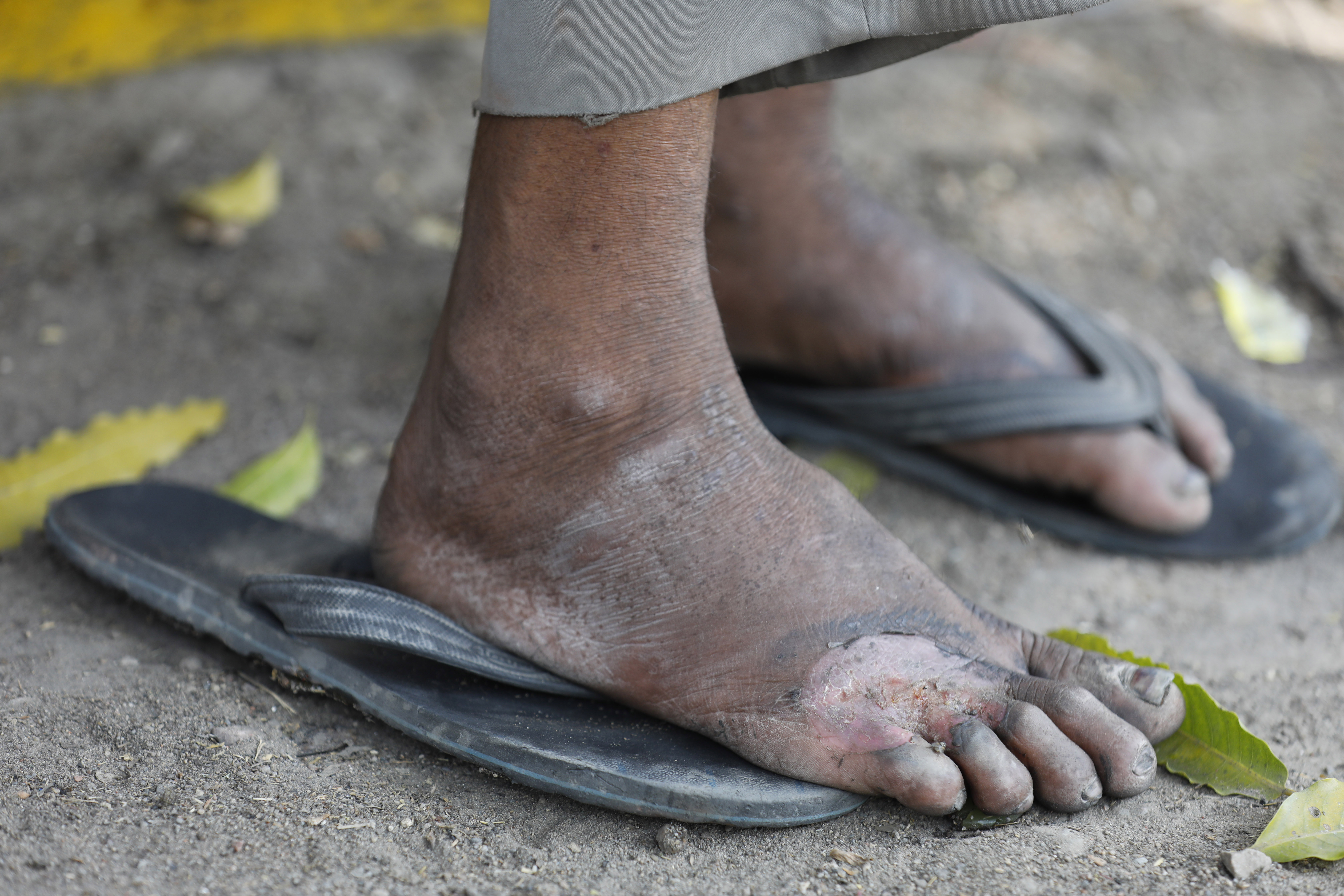 In this Monday, March 30, 2020, file photo, an injured foot of a daily wage laborer is seen as he rests on way to his village…
