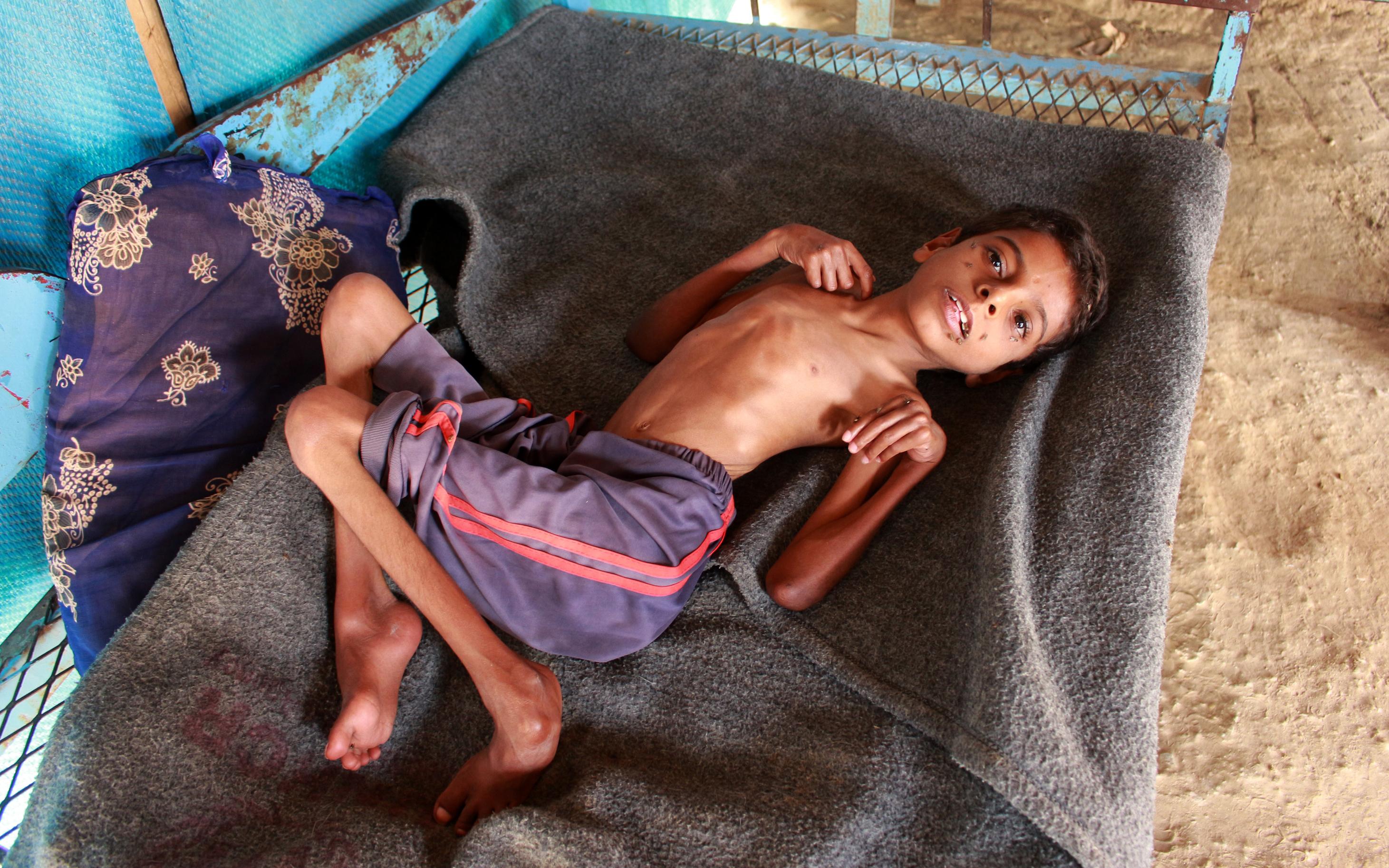 أجساد الأطفال اليمنيون هزيلة بسبب سوء التغذية