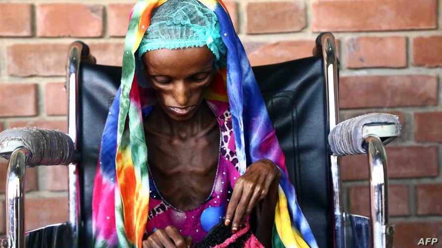 الفتاة اليمنية جالسة على كرسي متحرك في مستشفى الثورة بمدينة الحديدة