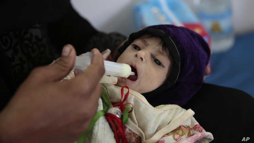 طفلة يمنية تعاني من سوء التغذية الحاد