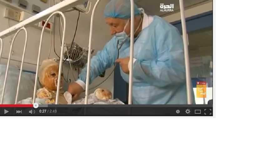 طفلة مصابة بحروق تخضع للعلاج بتقنية الخلايا الجذعية في مستشفى السلام اللبناني