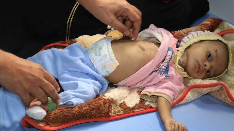 يونيسف تكشف خطورة الظروف التي يعيشها أطفال اليمن