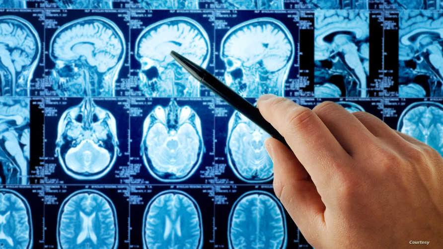 صورة بالأشعة لدماغ أحد المرضى