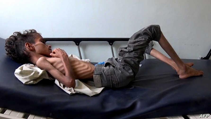 طفل يمني في الـ10 من عمره في أحد مستشفيات تعز