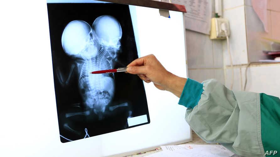 طبيب ينظر إلى أشعة للتوأمين اليمنيين عبد الخالق وعبد الرحيم