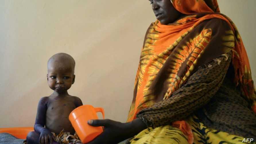 طفل يعاني من سوء التغذية في الصومال