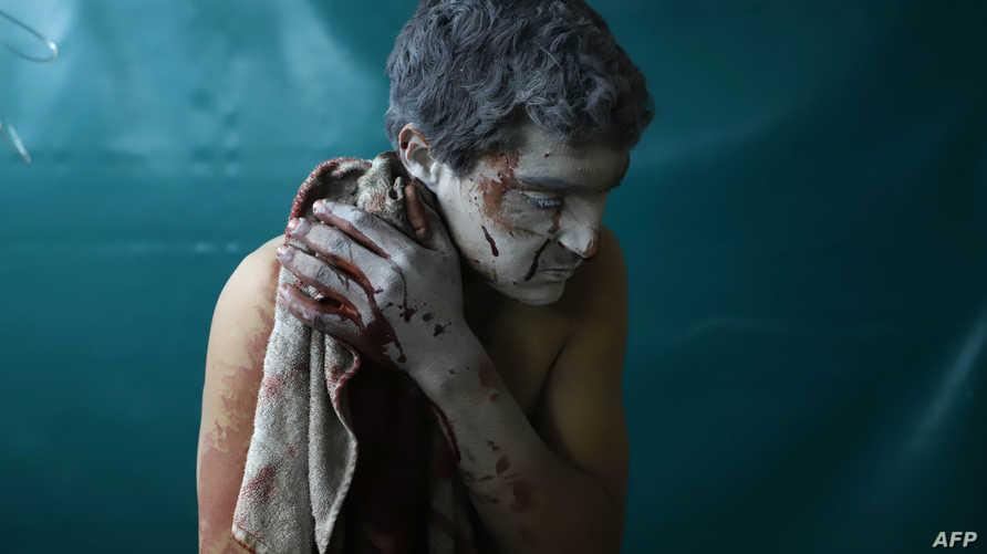 سوري أصيب في الغوطة الشرقية ينتظر الحصول على إسعافات