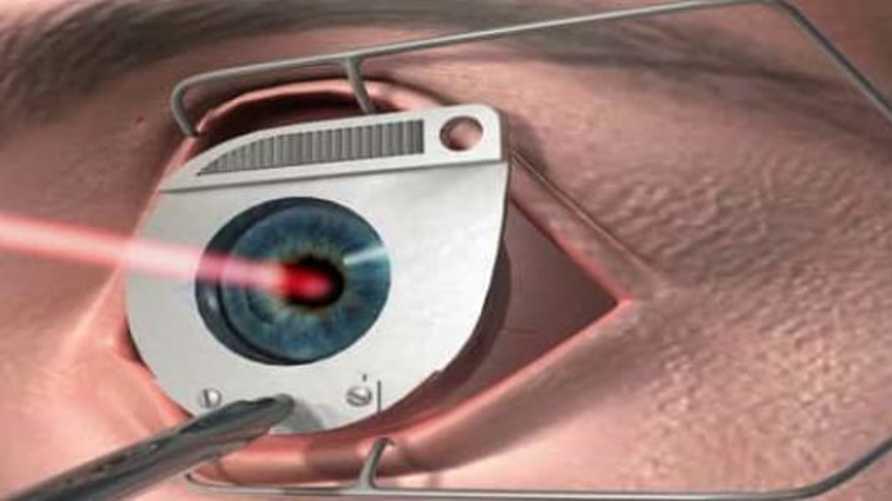 ما مدى خطورة عمليات الليزر على العين؟