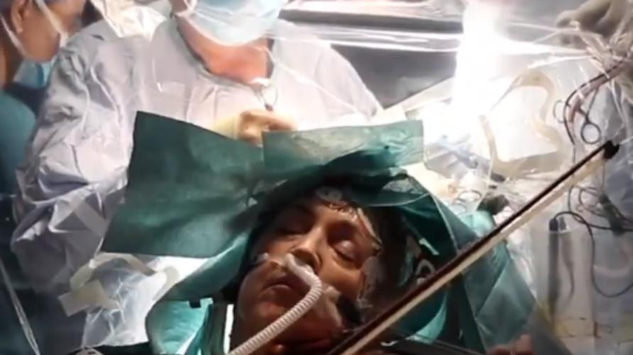داغمار تورنر (53 عاما) العازفة في أوركسترا جزيرة وايت السمفونية في جنوب أنكلترا، تمارس العزف أثناء عملية جراحية في دماغها