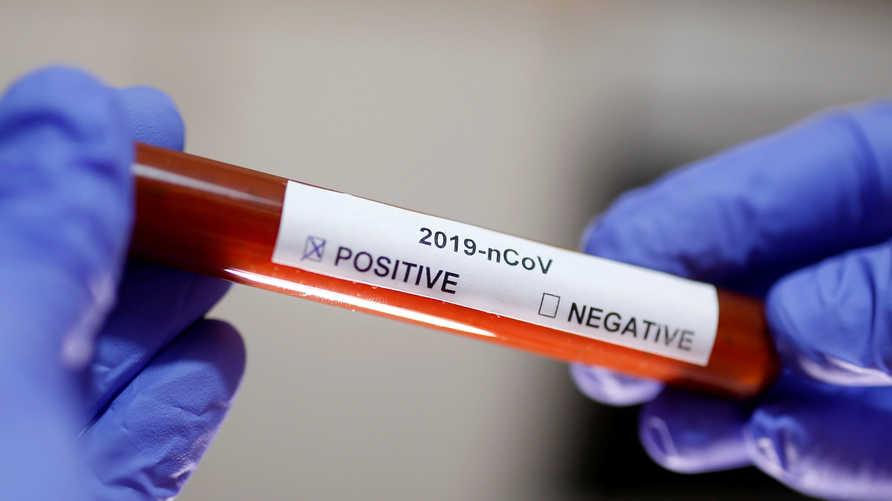 سباق مع الزمن للوصول إلى علاج فعال من شأنه القضاء على فيروس كورونا المستجد