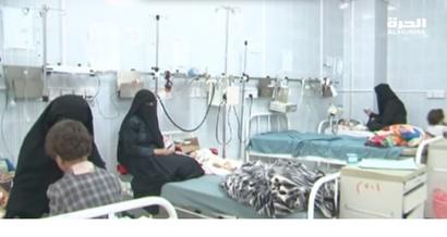 أطفال يمنيون يعانون من سوء التغذية