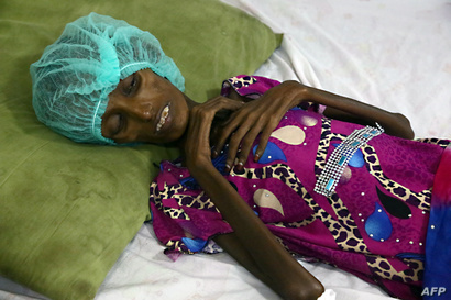 حالة سعيدة أحمد تختصر معاناة مليون ونصف طفل يمني يعانون من سوء التغذية