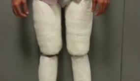 المهرب حاول إخفاء المخدرات في ساقيه