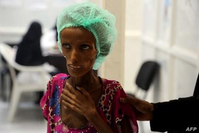سعيدة أحمد في المستشفى