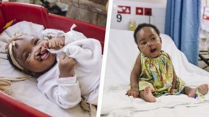صورة للطفلة أيساتا، ذات السبعة أعوام، قبل العملية وبعدها، المولودة بالشفة الأرنبية