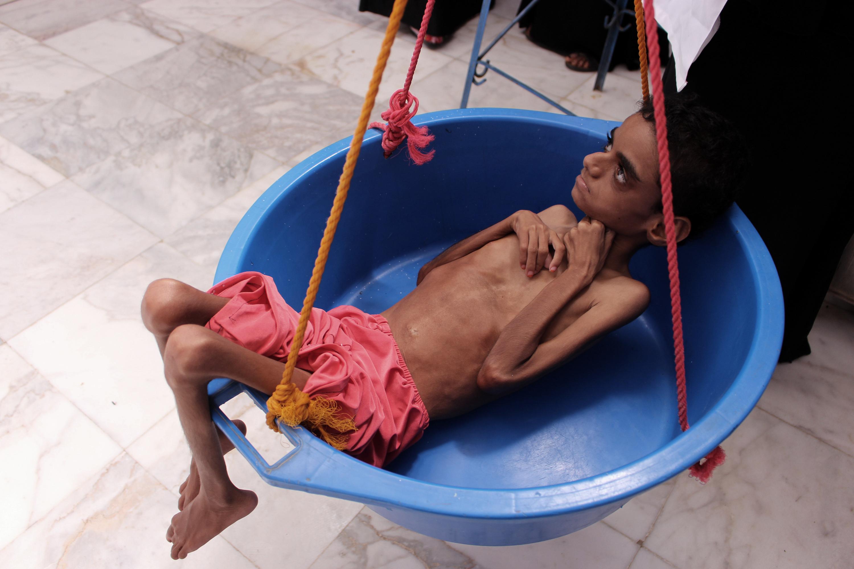 قياس وزن طفل يمني في مركز صحي بمحافظة حجة، شمال غرب اليمن