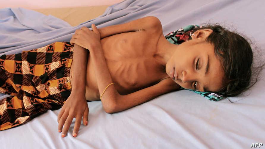 معاناة الأطفال من سوء التغذية في اليمن