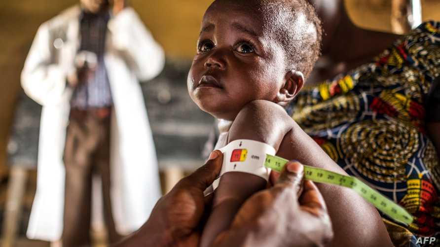 طفل في مركز تابع لبرنامج الأغذية العالمي في الكونغو الديمقراطية