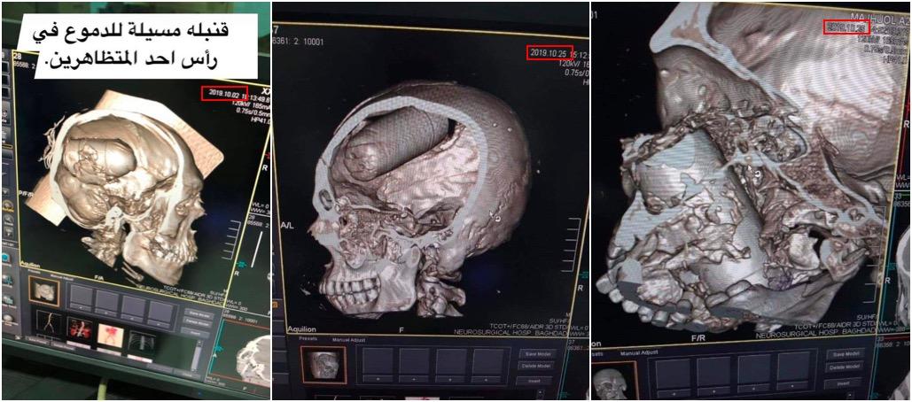 صور لما يبدو الأشعة المقطعية للمصابين بقنابل الغاز من عيار 40 مليمتراً. يمكن ملاحظة التواريخ المظلة بالأحمر واسم المستشفى أدناه: مستشفى جملة الجراحة العصبية، بغداد. المصدر 1 والمصدر 2.